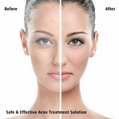 36pcs Remover Pimple Master Patch