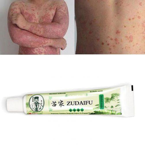Zudaifu Skin Care Cream