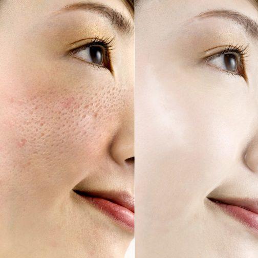 Anti-Aging Serum Face Cream